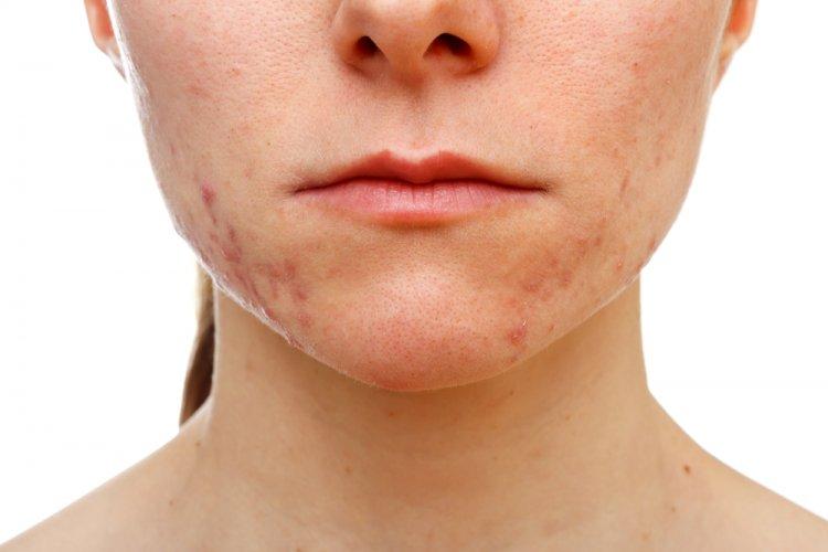 Mejores tratamientos para las cicatrices del acné